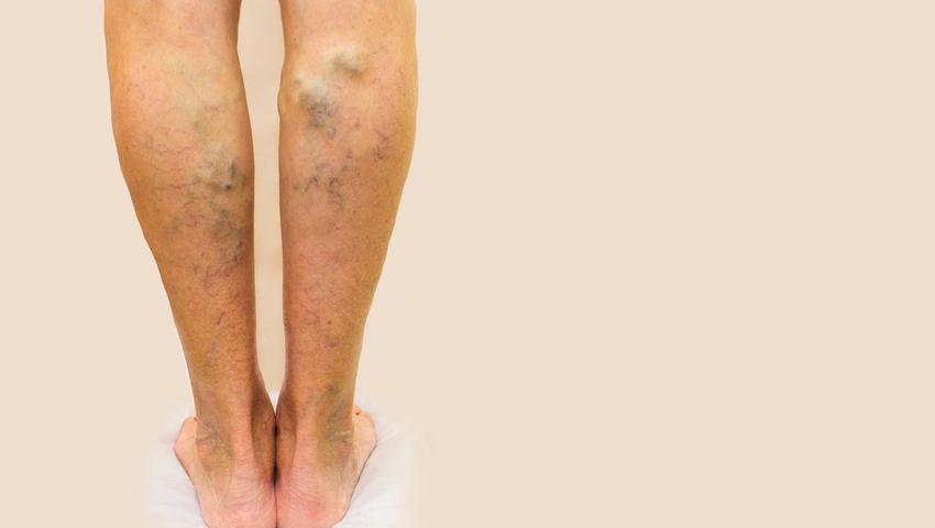 Cosa sono le vene varicose primarie?