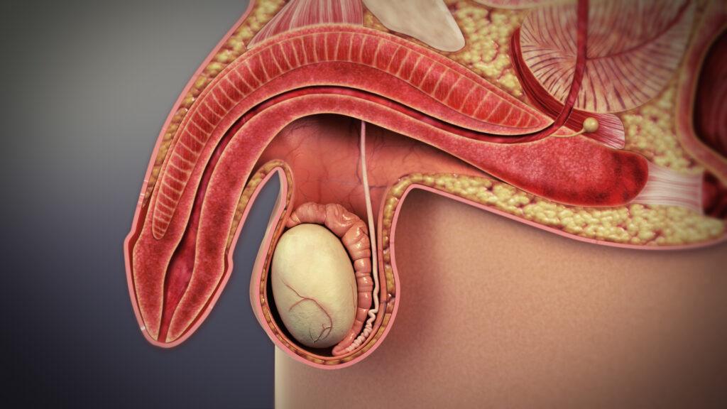 Disfunzione erettile - quali possono essere le cause?