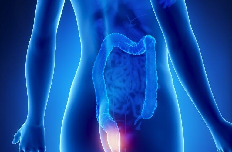 Cosa sono le emorroidi? I sintomi delle emorroidi